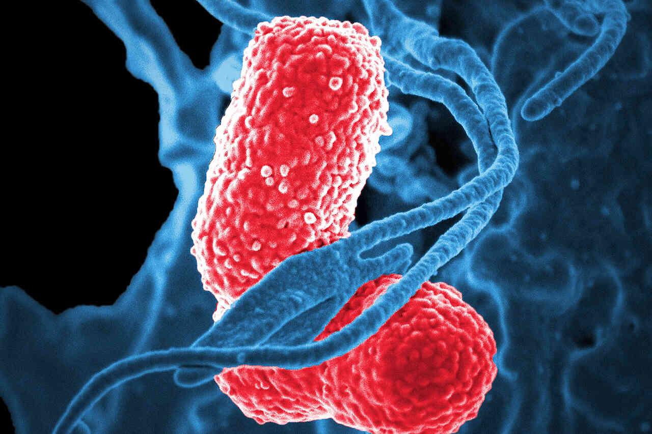 Pneumonia – diagnostic și tratament